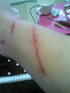 飼い猫に襲われた手首の傷